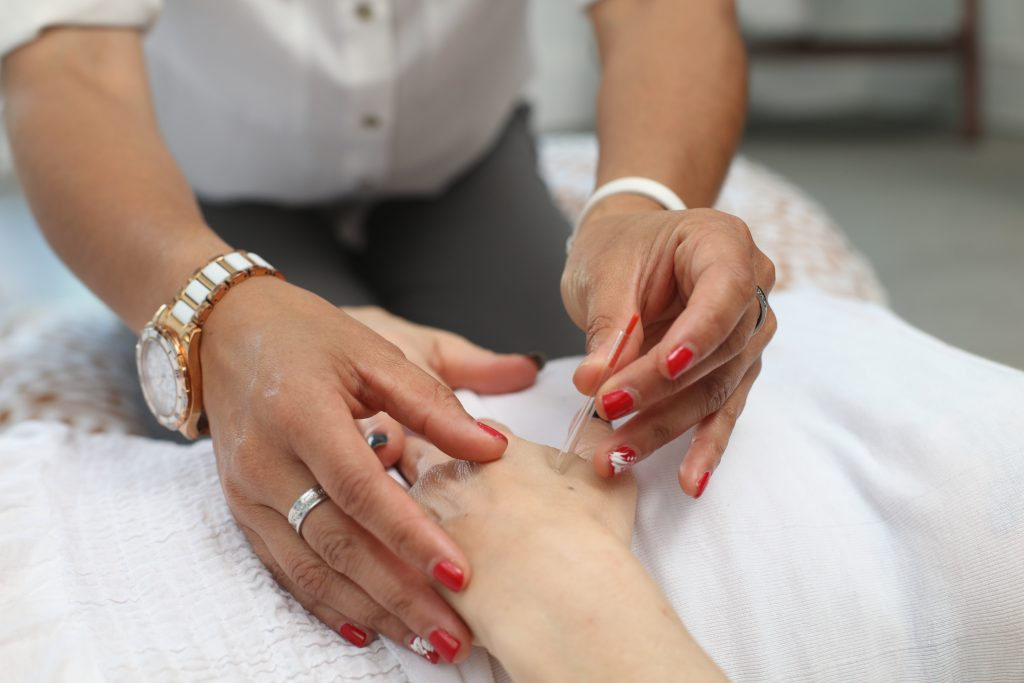 A person receiving natural pain relief through acupuncture